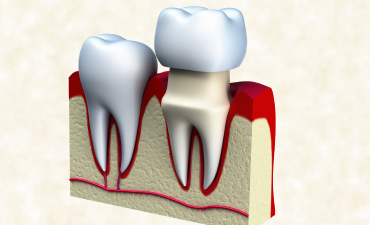 whittlessey-dental-treatment-picture
