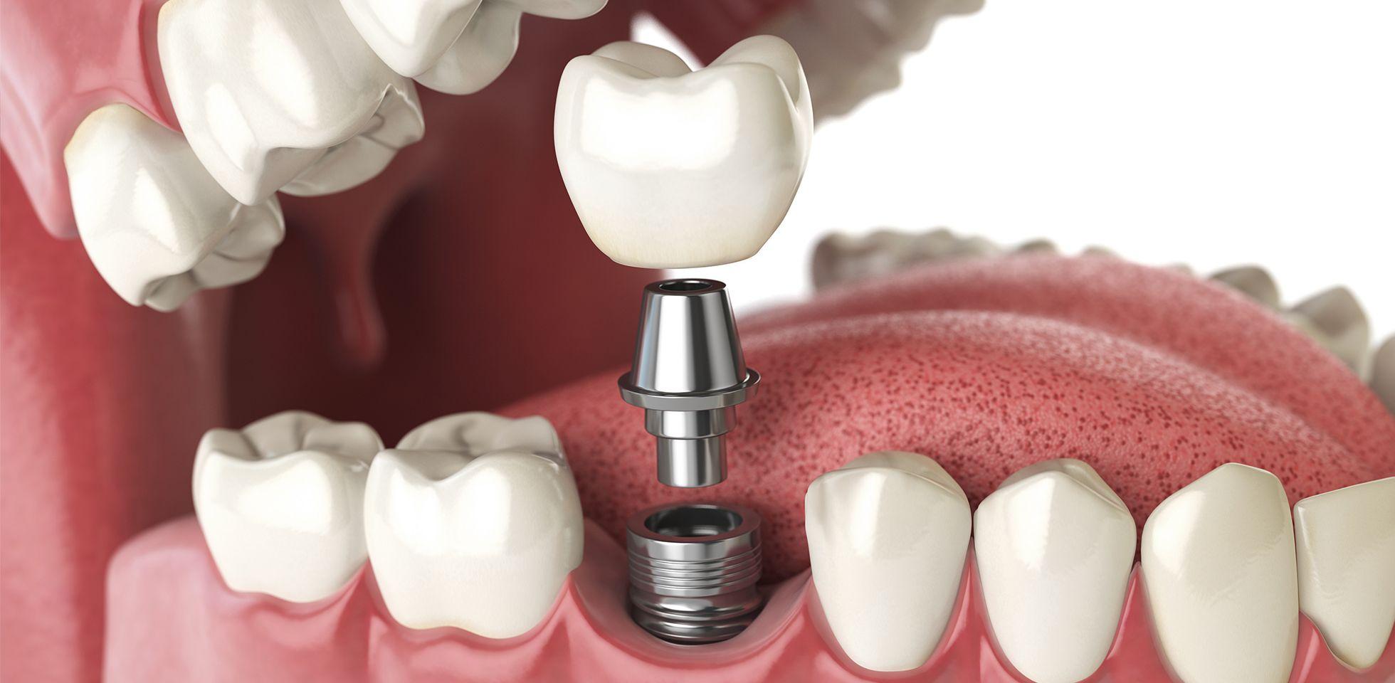 service-implant